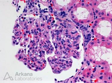 Acute Proliferative Glomerulonephritis