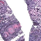 ANCA-Mediated Necrotizing Arteritis