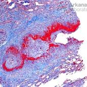 ANCA-Mediated Necrotizing Arteritis_2