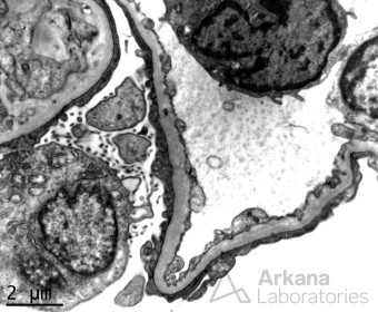 Diffuse Foot Process Effacemnt FSGS Tip Variant