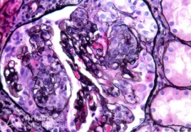 Endocapillary Proliferation with Segmental Crescent Formation in Lupus Nephritis on Jones Silver