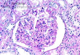 Enlarged Glomerulus with a FSGS Tip Lesion on PAS