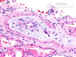 Fibrointimal Proliferation and Mucoid Intimal Edema in Opana-Associated TMA_2