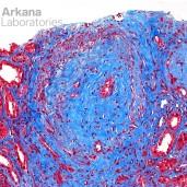 Fibrointimal Vascular Proliferation from Vascular Damagein ANCA Trichrome
