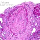 Fibrointimal Vascular Proliferation from Vascular Damagein ANCA