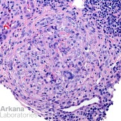 Giant Cells in Crescent in Anti-GBM Disease, H&E Stain
