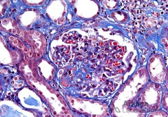 Glomerulus with Perihilar FSGS and Hyalinosis on Trichr