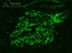 Granular, Glomerular C3 Deposition