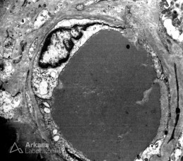 Hylaine Thrombus with Vague Substructure on EM