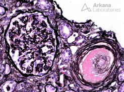 Intimal Expansion and Lumen Occlusion with Medial Necrosis in Scleroderma Renal Crisis