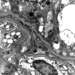 Mesangial and Vague Subendothelial Immune Complex Deposits