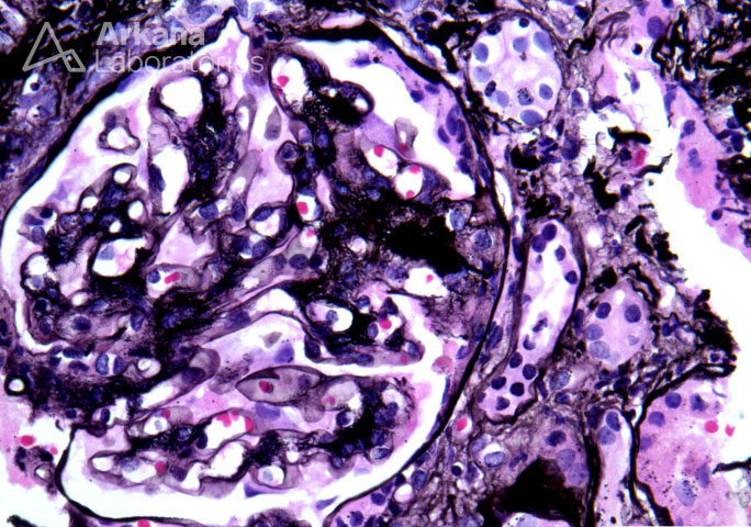 Mesangial Expansion and Loop Adhesion in IgA Nephropathy on Jones Silver