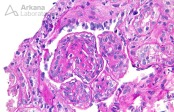 Mesangioendocapillary Proliferation with Lobular Accentuation