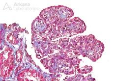 Mesangioendocapillary Proliferation with Lobular Accentuation_3