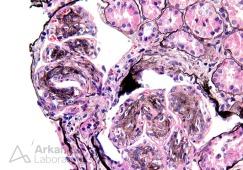 Mesangioendocapillary Proliferation with Lobular Accentuation_4