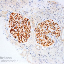 Positive THSD7A IHC Stain