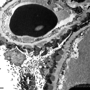 Subepithelial Deposits in Idiopathic Membranous Glomerulopathy on EM_2
