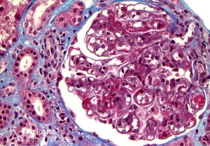 Wire Loop Formation and Hyaline Thrombi in Lupus Nephritis on Trichrome