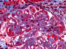 Wire Loop Formation in Lupus Nephritis on Trichrome Stain
